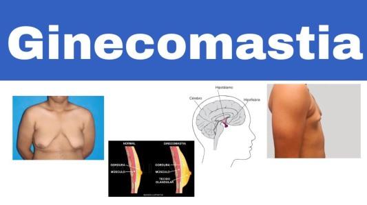 ginecosmatia